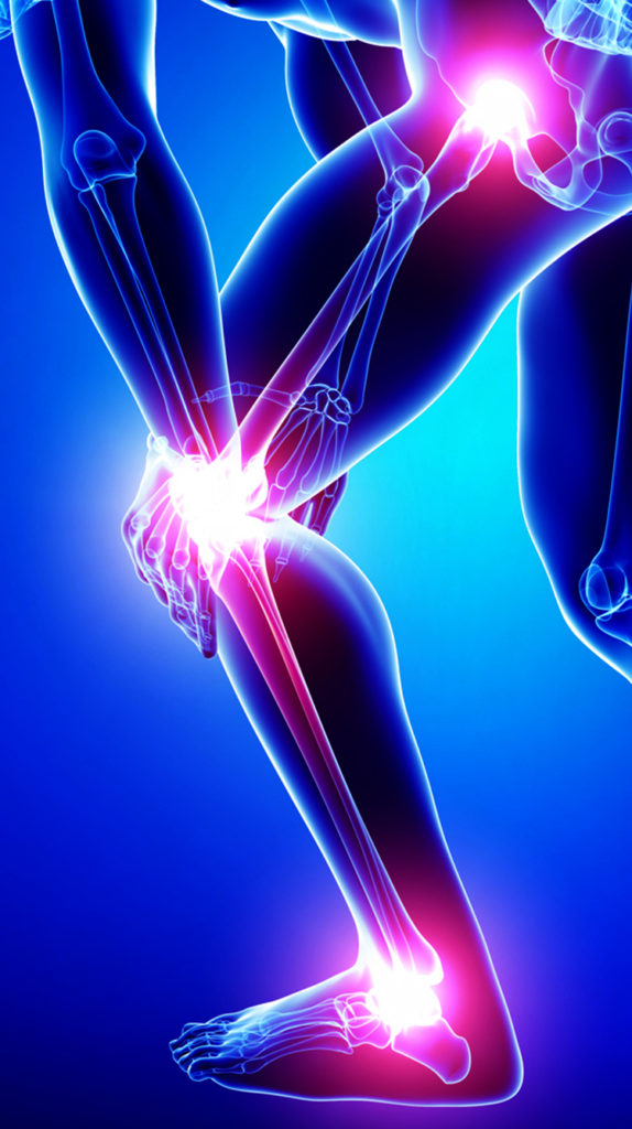 Knee and Ankle Pain
